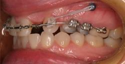 TADS Image 2 Great Neck Orthodontics